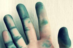 Чем отмыть зеленку с кожи? Полезные советы